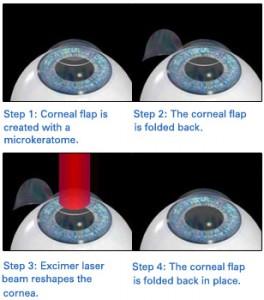 Details Of LASIK Surgery